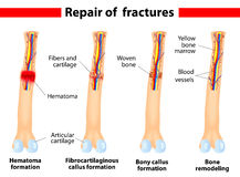 Processo da cura da fratura de osso Fotos de Stock Royalty Free
