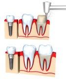 Processo de instalação dental da coroa, isolado ilustração do vetor
