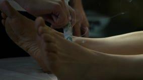 Processo di agopuntura della medicina di cinese tradizionale Trattamento tradizionale cinese, riscaldamento del punto del corpo stock footage