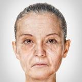 Processo di invecchiamento, procedure antinvecchiamento della pelle di ringiovanimento fotografia stock