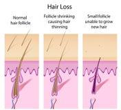 Processo di perdita di capelli Immagine Stock