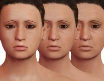Processus esthétique de rajeunissement après thérapie de PRP Traitement dermatologique facial illustration libre de droits