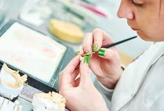 Processus prosthétique d'art dentaire Image stock