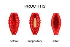 Proctitis före och efter behandling av ändtarms- stolpillerar stock illustrationer