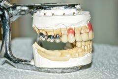 Productie van tandprothesen, metaal-ceramische kronen op de modellen van gipstanden in de behandeling van patiënten door tandarts stock afbeeldingen