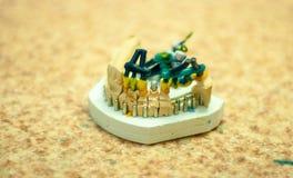 produktion av tand- implantat Arkivbild