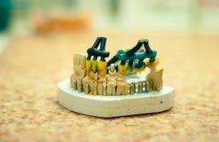 produktion av tand- implantat Fotografering för Bildbyråer