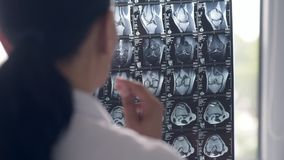 Professional doctor looking at the x ray scan stock footage
