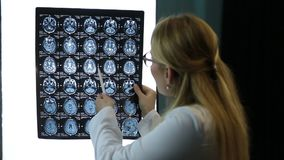 Doctor examines MRI scan of a patient attentively. Professional female physician in lab coat attetively examining the MRI scan of patient`s brain in hospital stock video footage