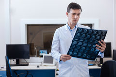 Professional male oncologist putting a diagnosis. This is cancer. Professional good looking male oncologist looking at the X ray photo and putting a diagnosis royalty free stock photography