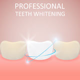 Professional Teeth Whitening, Healthy Tooth and yellow teeth,. Vector illustration Stock Photography
