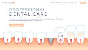 Professioneller Zahnpflege der Vektorillustration lizenzfreie abbildung