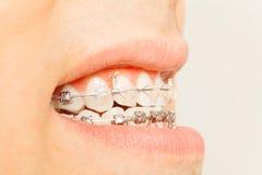 Profielmening van steunen voor orthodontische behandeling Stock Fotografie
