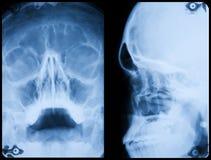 Profil avant et latéral de crâne de rayon X Photo libre de droits