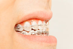 Profile view of braces for orthodontic treatment Stock Photography
