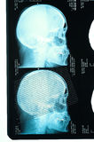 Profile view with a human skull X Ray Royalty Free Stock Image