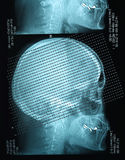 Profile view with a human skull X Ray Stock Photography