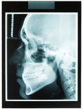 Profile xray of man jaw for dentist Stock Photos
