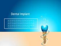 Progettazione del tabellone per le affissioni dell'impianto dentario fotografia stock