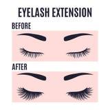 Progettazione di estensione dei cigli prima e dopo cura illustrazione di stock