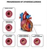 Progresja Atherosclerosis Obrazy Stock
