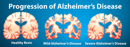 Progression of Alzheimer's disease on blue background Stock Photos