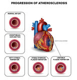 Progression of Atherosclerosis Stock Images