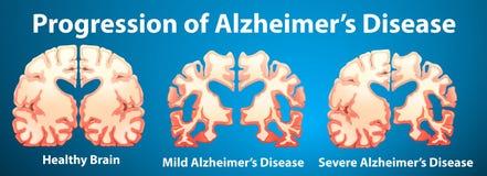 Progression de la maladie d'Alzheimer sur le fond bleu Photos stock