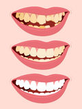 Progressive Stages Of Tooth Decay caries. Progressive Stages Of Tooth Decay, illustration of open female mouth showing three steps to rotten teeth Royalty Free Stock Image