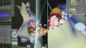 projection 3D du coeur sur le moniteur clips vidéos