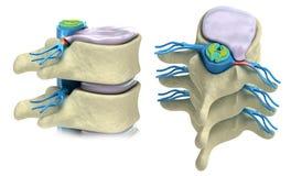 Prolapse of intervertebral disc vector illustration