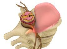 Prolapse of intervertebral disc closeup Royalty Free Stock Photos
