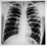 Promieniowania rentgenowskie światło Zdjęcia Royalty Free