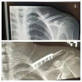 Promieniowania rentgenowskie obrazy stock
