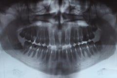 Promieniowania rentgenowskie zęby Obraz Royalty Free