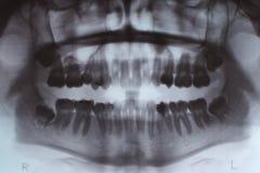 Promieniowania rentgenowskie zęby Fotografia Royalty Free