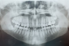 Promieniowania rentgenowskie zęby Zdjęcie Stock