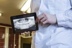 Promieniowania rentgenowskie zęby Zdjęcie Royalty Free