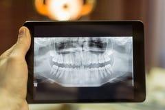 Promieniowania rentgenowskie zęby Zdjęcia Royalty Free
