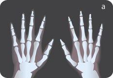 Promieniowanie rentgenowskie Royalty Ilustracja