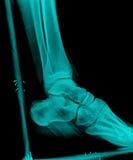 Promieniowanie rentgenowskie Fotografia Royalty Free