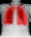 Promieniowanie rentgenowskie Zdjęcie Royalty Free