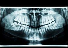 Promieniowanie rentgenowskie atm Obrazy Stock
