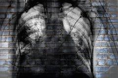 Promieniowanie rentgenowskie klatka piersiowa na ściana z cegieł, pojęcie ogólnospołeczny kłopot zdjęcie stock