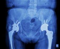 Promieniowanie rentgenowskie modny prosthesis Zdjęcie Stock