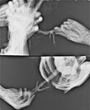 Promieniowanie rentgenowskie ptasia stopa Zdjęcie Royalty Free