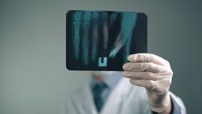 Promieniowanie rentgenowskie ręka rozważa lekarką w szpitalu zbiory wideo
