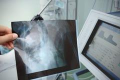Promieniowanie rentgenowskie w doctor& x27; s ręka przy cierpliwym wezgłowiem Zdjęcia Royalty Free