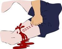 Pronto soccorso - flusso sanguigno vicino dalla ferita sulla gamba Immagine Stock Libera da Diritti