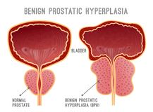 Prostatasjukdom Infographic stock illustrationer